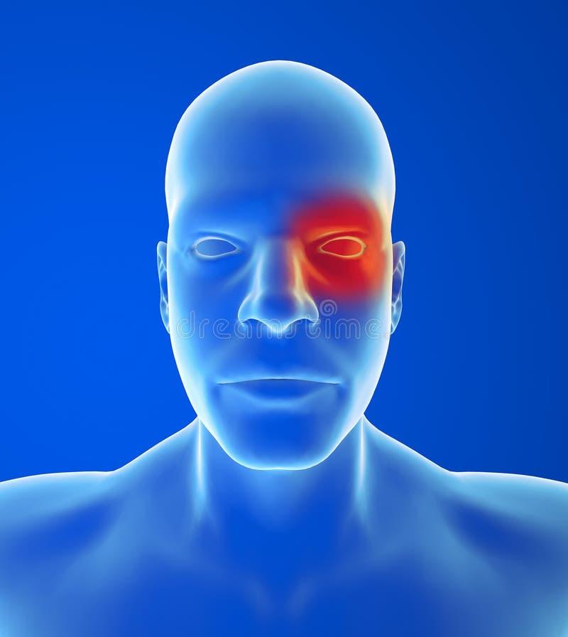 Tipo dolor de cabeza: Racimo ilustración del vector