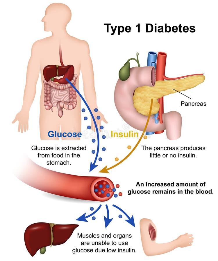 Tipo - 1 ilustração médica do diabetes com descrição inglesa ilustração do vetor