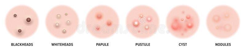 Tipos da acne, p?stulas das espinhas da pele e comed?es da cara ?cones de espinhas da acne da pele, problemas do vetor do skincar ilustração do vetor