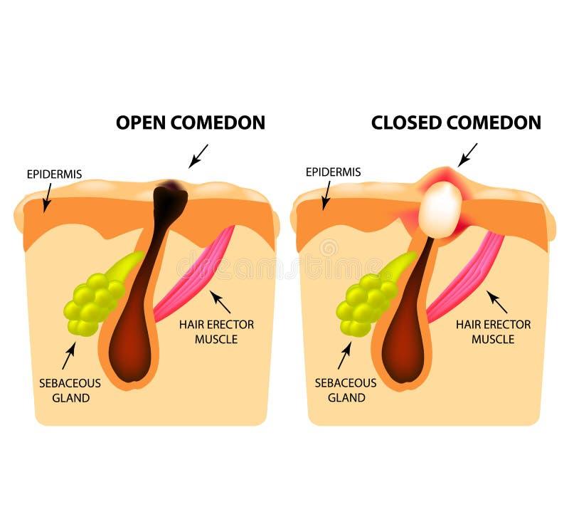 Tipos de acné Abra los comedones, comedones cerrados, estructura de la piel Infografía Ejemplo del vector en fondo aislado ilustración del vector