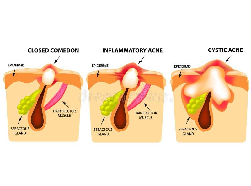 Tipos de acné Comedones cerrados, acné inflamatorio, acné enquistado La estructura de la piel Infografía libre illustration