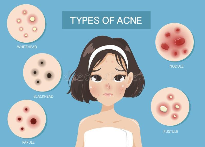 Tipos de acné de la mujer stock de ilustración