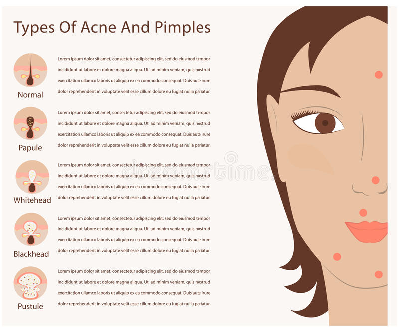 Tipos de acné y de espinillas ilustración del vector
