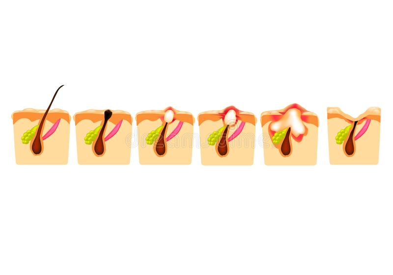 Tipos de acn? Comedones cerrados, comedones abiertos, acné inflamado, quistes Espinillas inflamadas La estructura de la piel cica ilustración del vector
