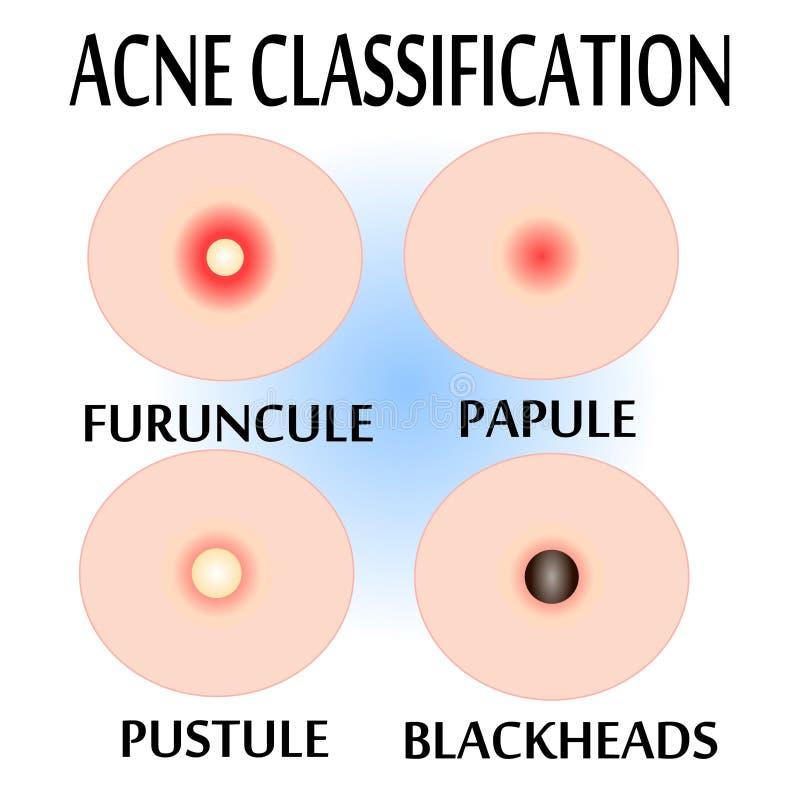 Tipos de acne e de espinhas, ilustração royalty free