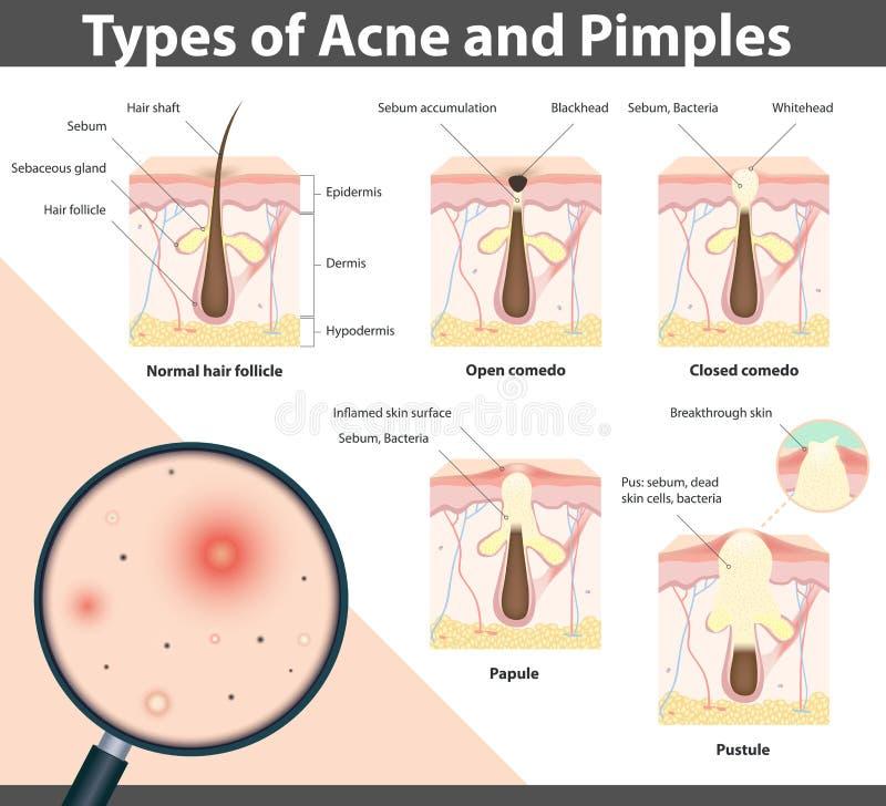 Tipos de acne e de espinhas, ilustração do vetor ilustração do vetor