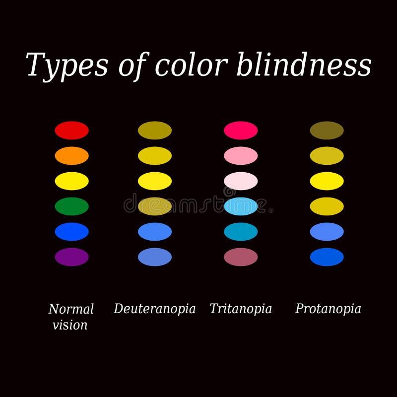 Tipos de acromatopsia Opinión de color del ojo Ejemplo del vector en un fondo negro ilustración del vector