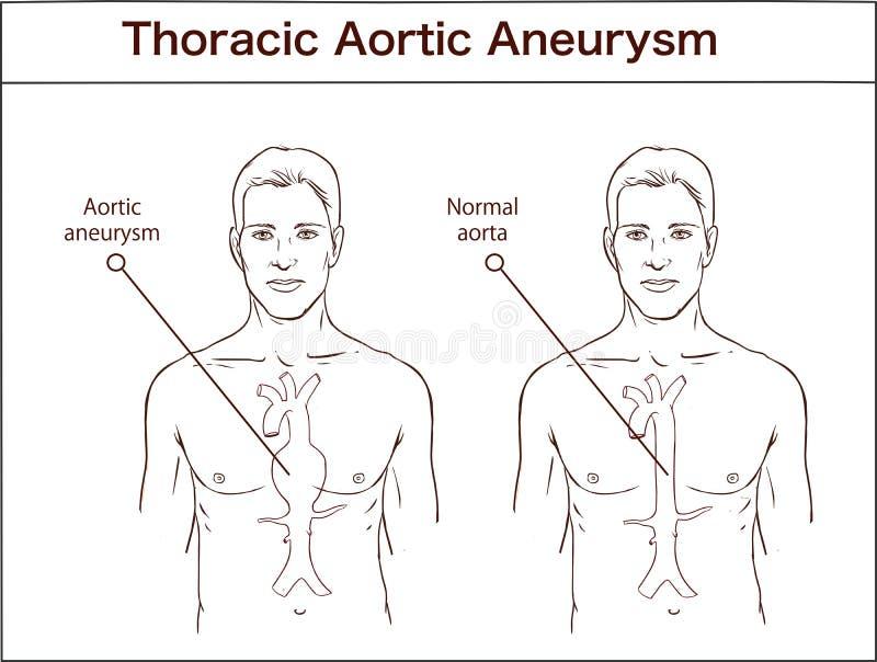 Tipos de aneurysm aórtico abdominal aorta normal y VE agrandada ilustración del vector