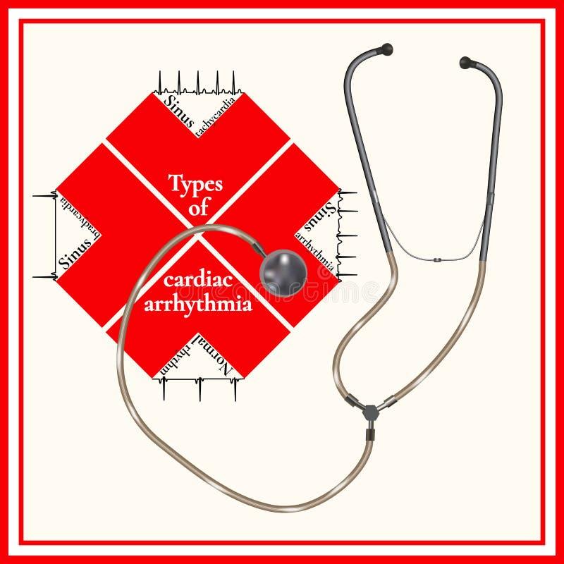 Tipos de arritmia cardiaca: taquicardia del sino, arritmia del sino stock de ilustración