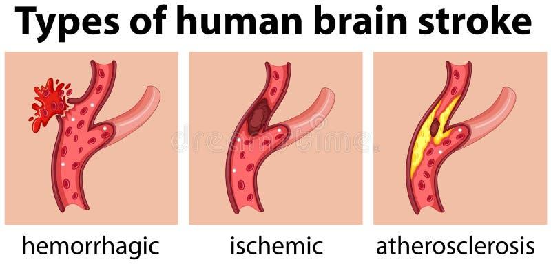 Tipos de curso do cérebro humano ilustração do vetor