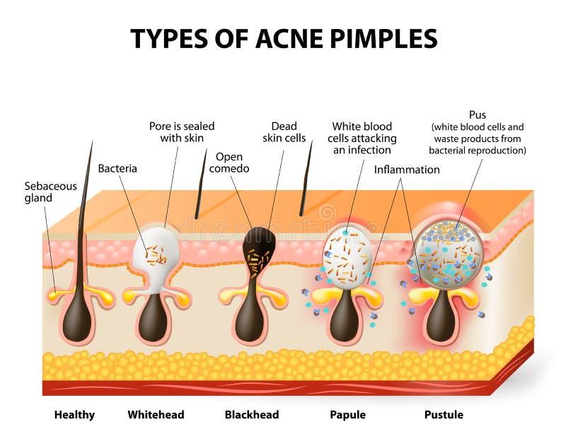 Tipos de espinhas da acne ilustração royalty free