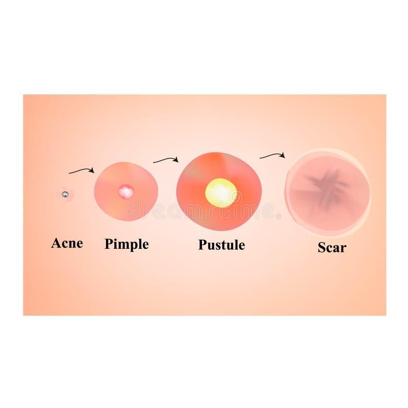 Tipos de espinillas, pústula, acné Piel marcada con una cicatriz después del acné y del acné Infograf?a Ejemplo del vector en ais stock de ilustración