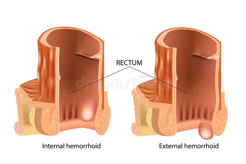 Tipos de hemorroidas As hemorroidas, igualmente chamaram pilhas ilustração do vetor