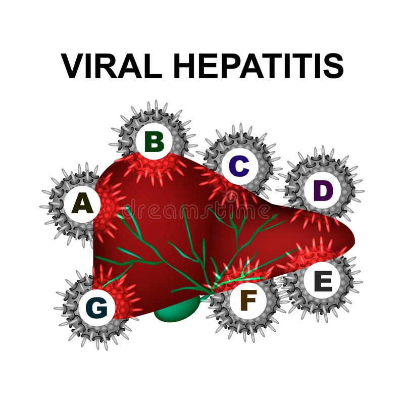 Tipos de hepatitis viral Hepatitis A, B, C, D, E, F, G D?a de la hepatitis del mundo Infograf?a Ejemplo del vector encendido ilustración del vector