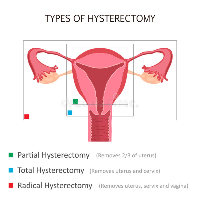 Tipos de histerectomia ilustración del vector. Ilustración de cerviz ...