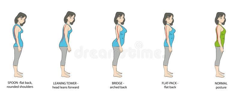 Tipos de mulheres da postura Ilustração do vetor ilustração royalty free