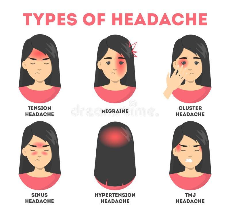 Tipos de sistema del dolor de cabeza Tensión y dolor del sino, jaqueca ilustración del vector