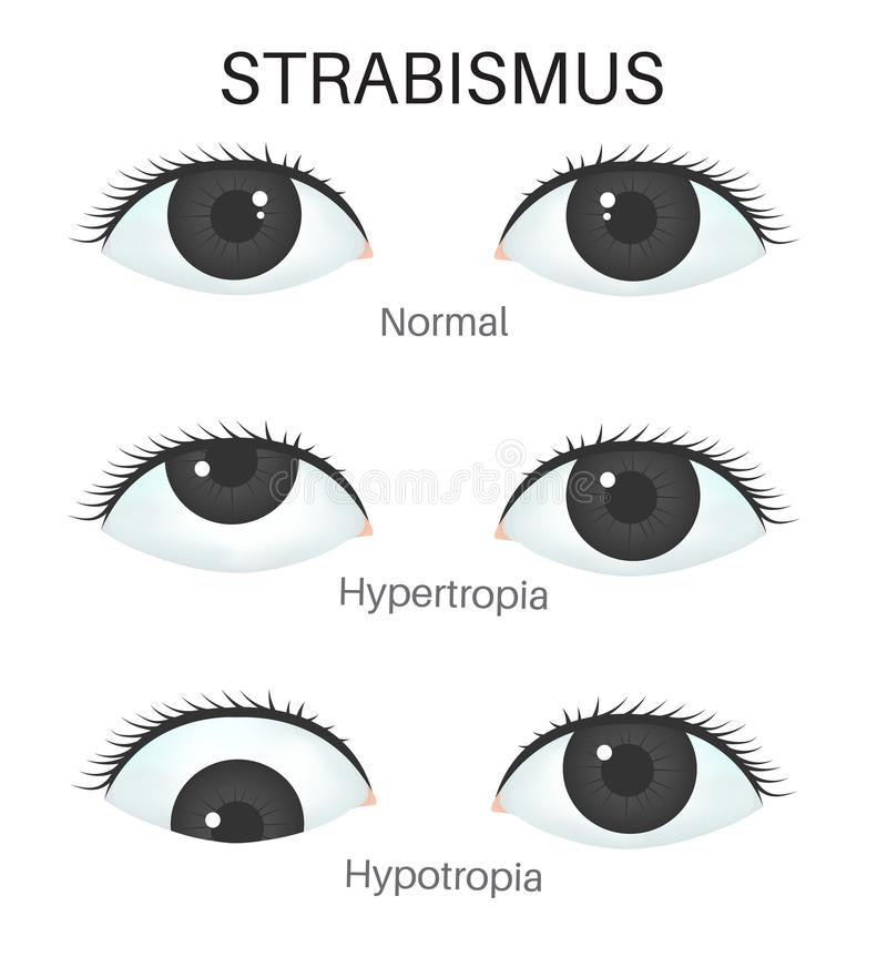 Tipos de strabismus-1 ilustração do vetor