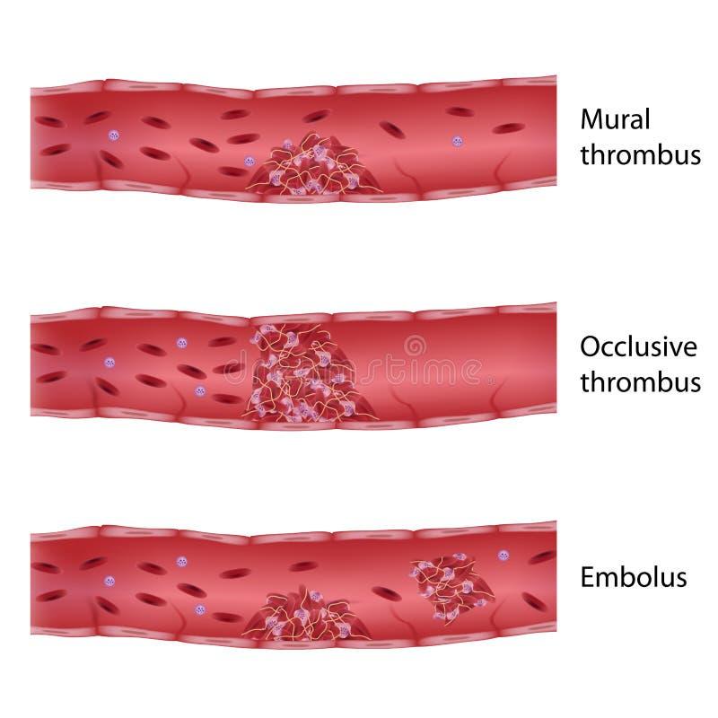 Tipos de trombosis stock de ilustración