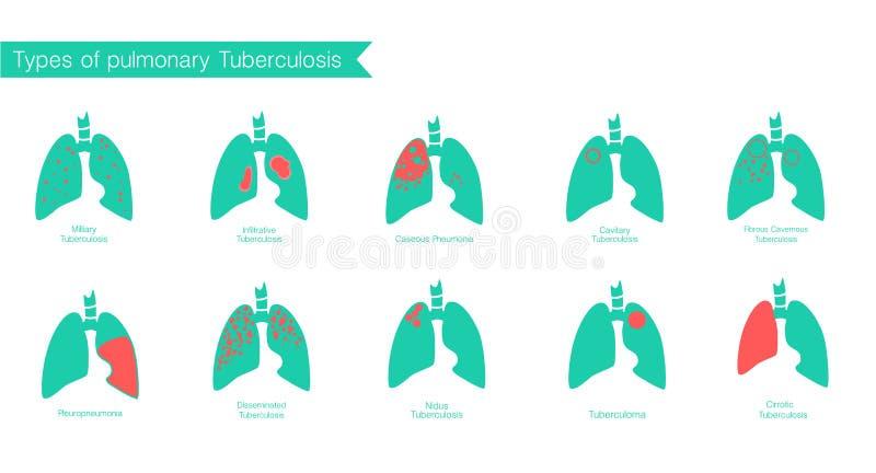 Tipos de tuberculose Silhueta do vetor médica ilustração stock