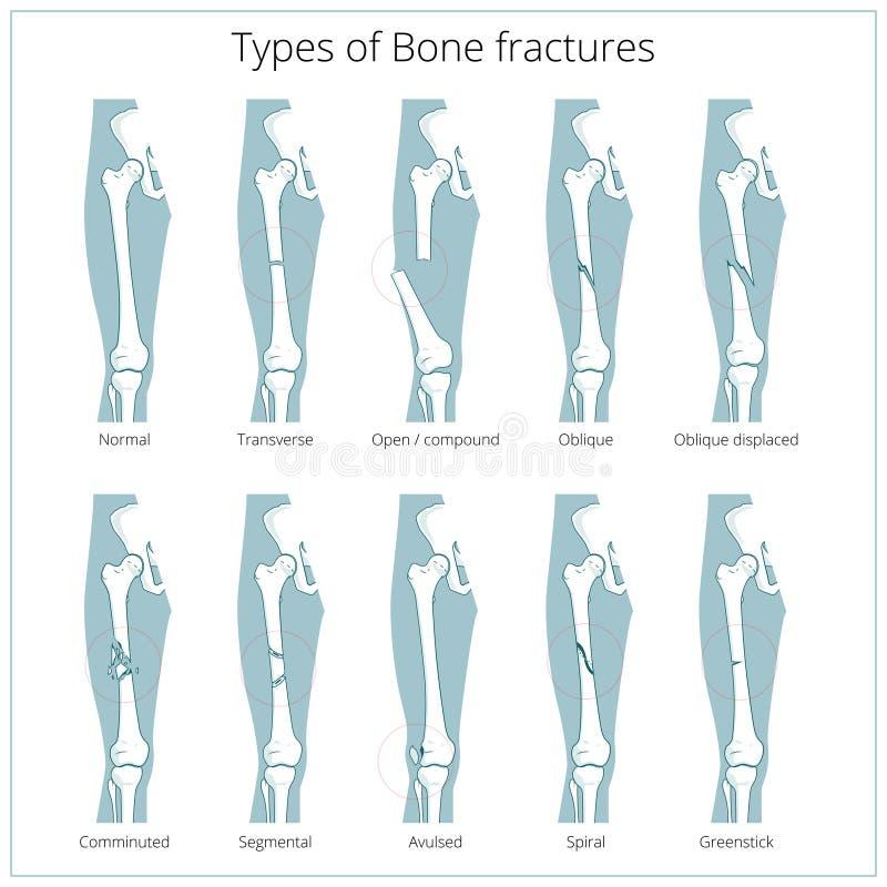 Tipos de vector educativo médico de las fracturas de hueso libre illustration