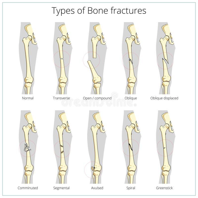 Tipos de vector educativo médico de las fracturas de hueso ilustración del vector
