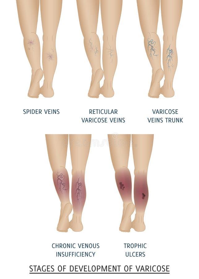 Tipos de veias varicosas nas mulheres Fases do desenvolvimento de varic ilustração stock