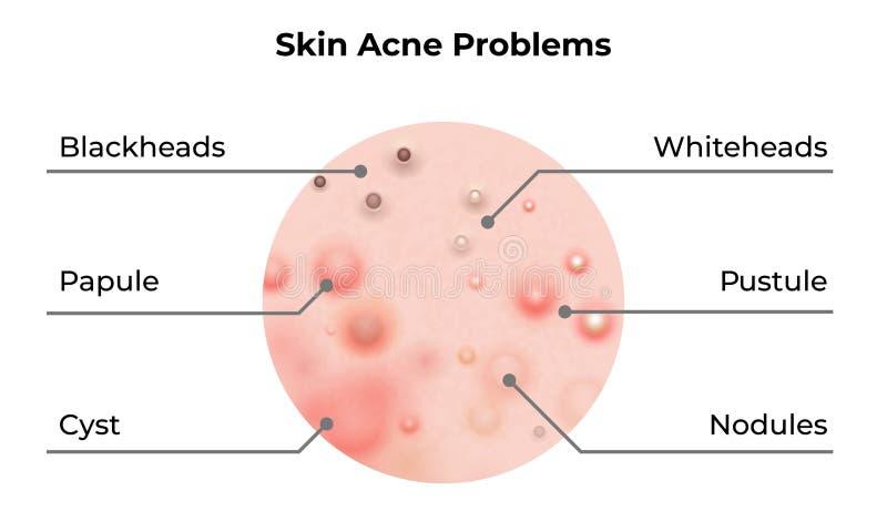 Tipos diagrama da acne da pele Problemas de pele doen?a do vetor, p?stulas das espinhas e comed?es, tratamento do skincare da cos ilustração stock