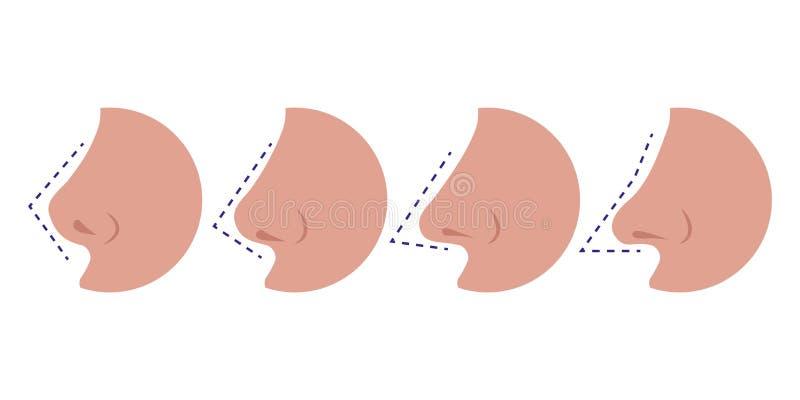 Tipos diferentes narizes da ilustração do vetor da fêmea ilustração royalty free
