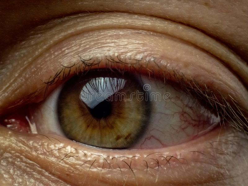 Tired Exhausted Green Brown Eye Close up. Macro Shot of Human Male Sore Eye Because of Fatigue, Exhaustion or Infection royalty free stock photography
