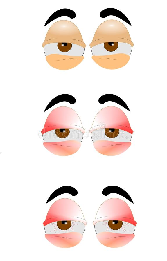 Free Tired Eyes Royalty Free Stock Photography - 27975197