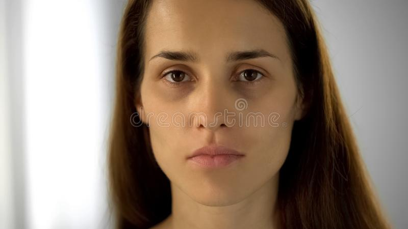 Tired woman with black circles under eyes looking at camera, lack of sleep. Stock photo royalty free stock photography