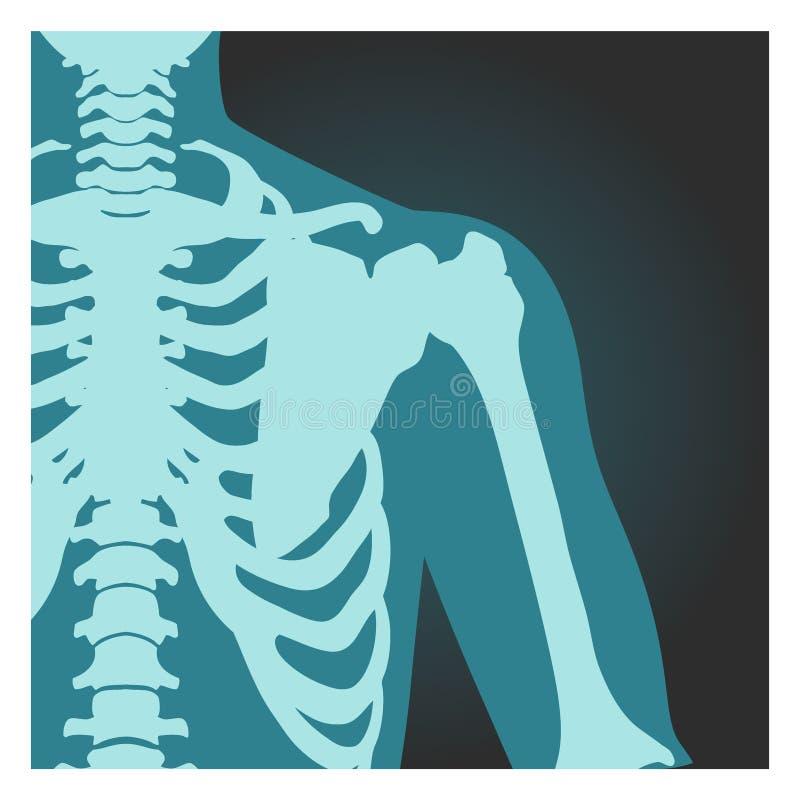 Tiro de la radiografía del hombro, de los huesos del cuerpo humano, de la radiografía, de la caja torácica, del pecho y del brazo ilustración del vector