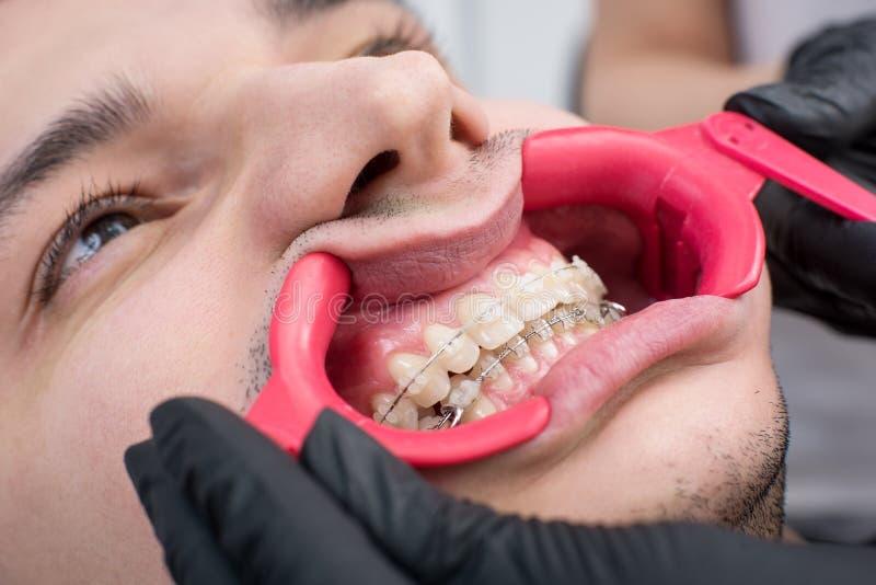 Tiro del primer de los dientes blancos con los apoyos y del retractor dental en la oficina dental fotografía de archivo
