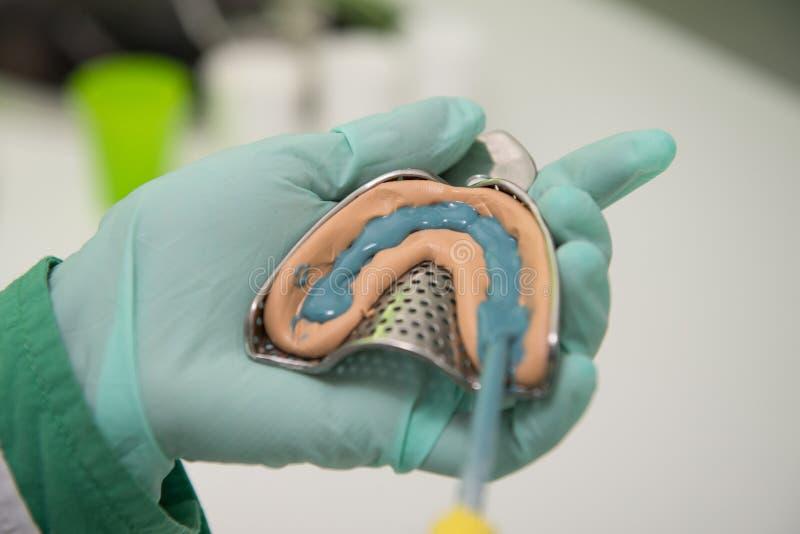 Tiro do close up da impressão dental com implante foto de stock