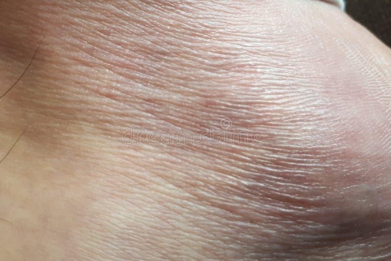tiro do pé humano da pele foto de stock