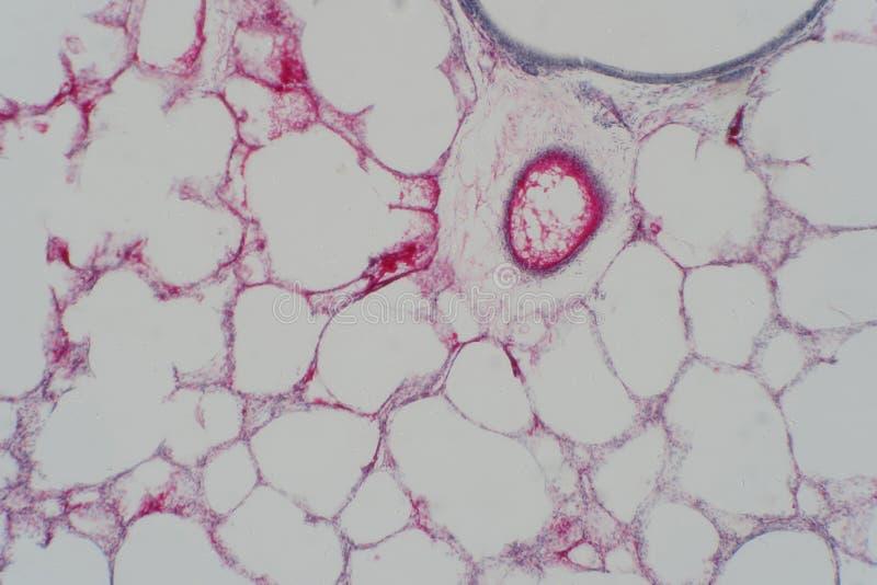 Tissu de poumon humain sous la vue de microscope photographie stock libre de droits