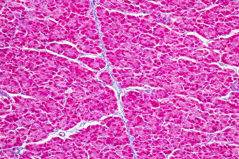 Tissue of pancreas is an organ of the digestive system and endocrine system of in humans. Tissue of pancreas is an organ of the digestive system and endocrine royalty free stock photo
