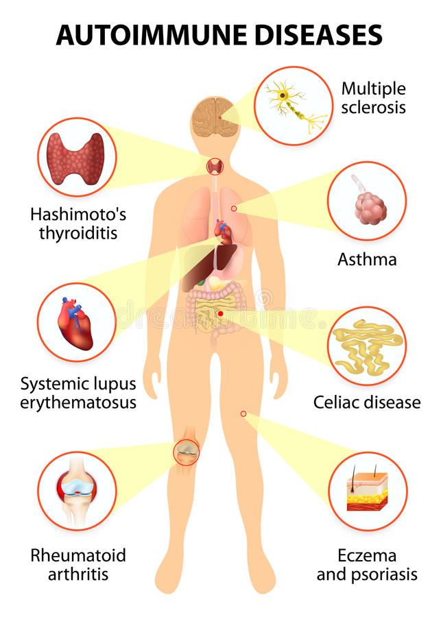 Tissues of the human body affected by autoimmune attack stock illustration
