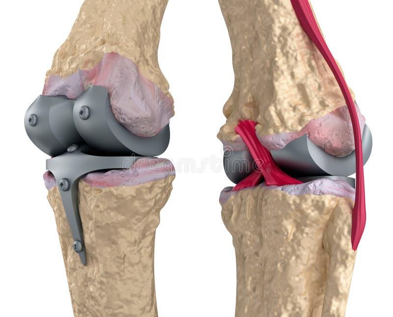 titanium för knä för gångjärnskarv royaltyfri illustrationer