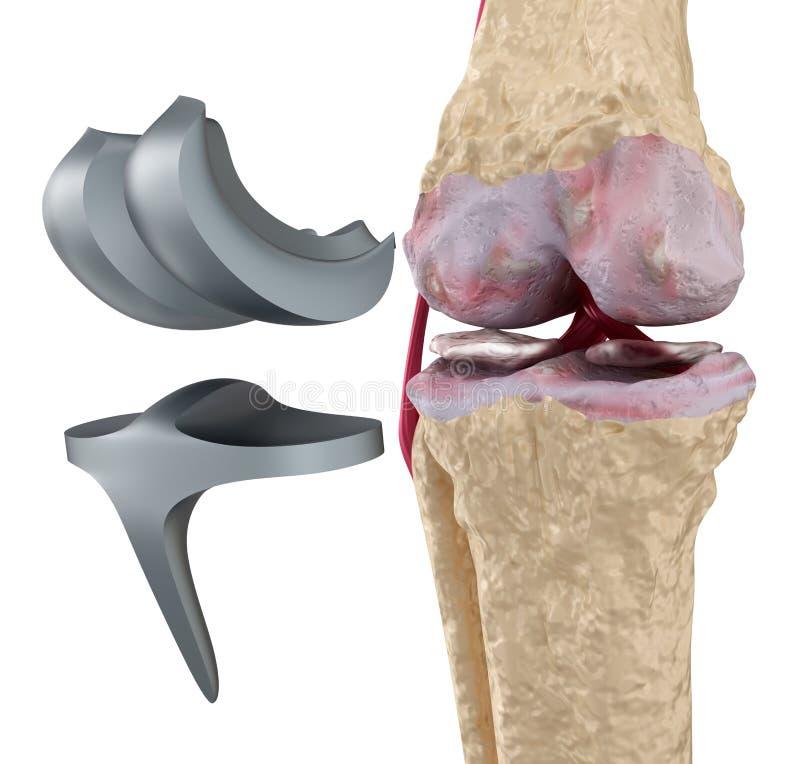 titanium för knä för gångjärnskarv isolerat royaltyfri illustrationer