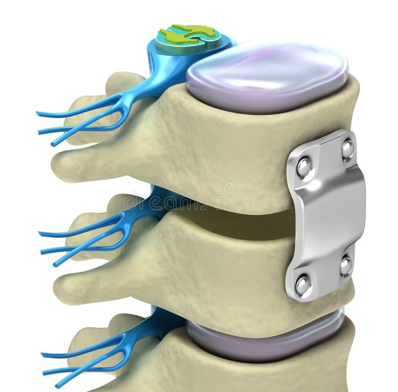 titanium för system för konsolfixation ryggrads- royaltyfri illustrationer