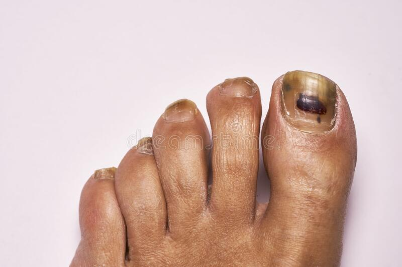Toe with blood blister under nail. Stubbed toe with blood blister under nail . Also  some foot fungus , Athletes foot royalty free stock image