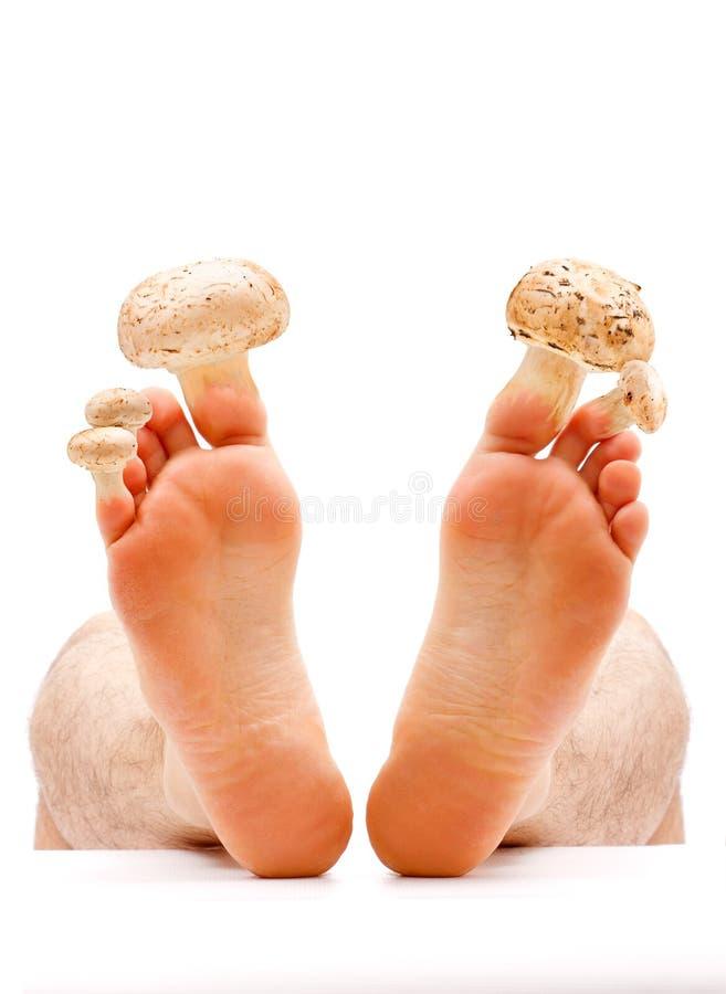 Toe nail and skin fungus royalty free stock photo