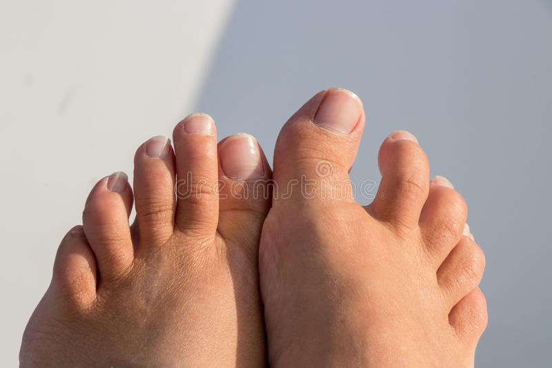 These toes need a pedicure stock photo