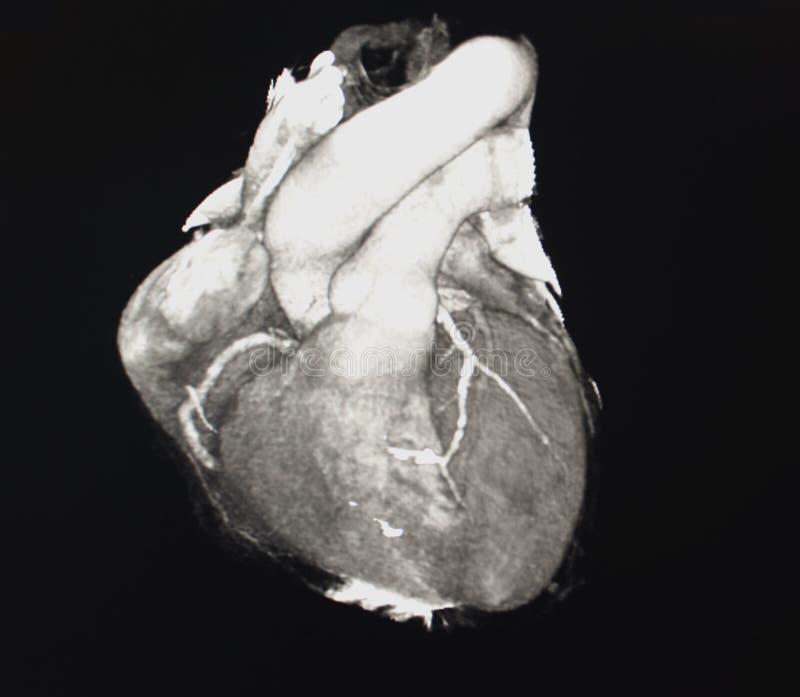 Tomografia computata del cuore fotografie stock