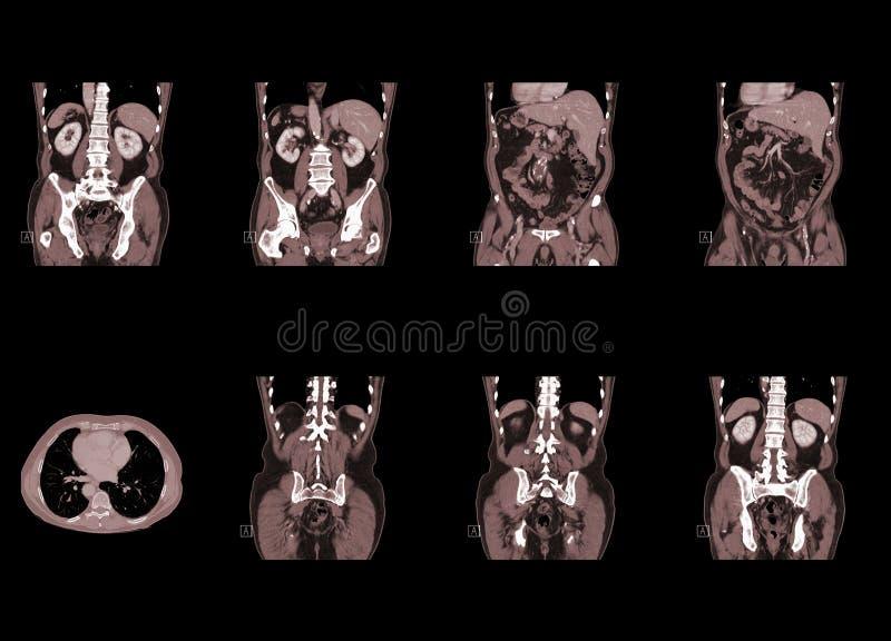 Tomografia computata della cassa e dell'addome fotografia stock libera da diritti