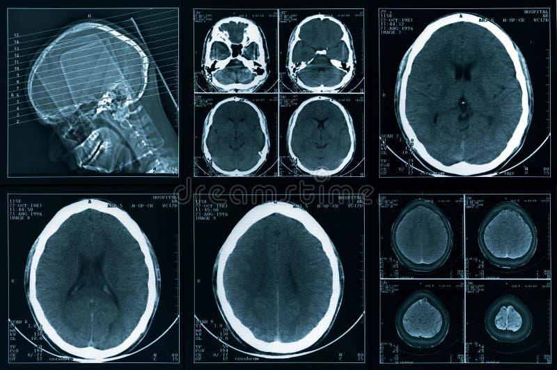 Tomografia principal do computador foto de stock