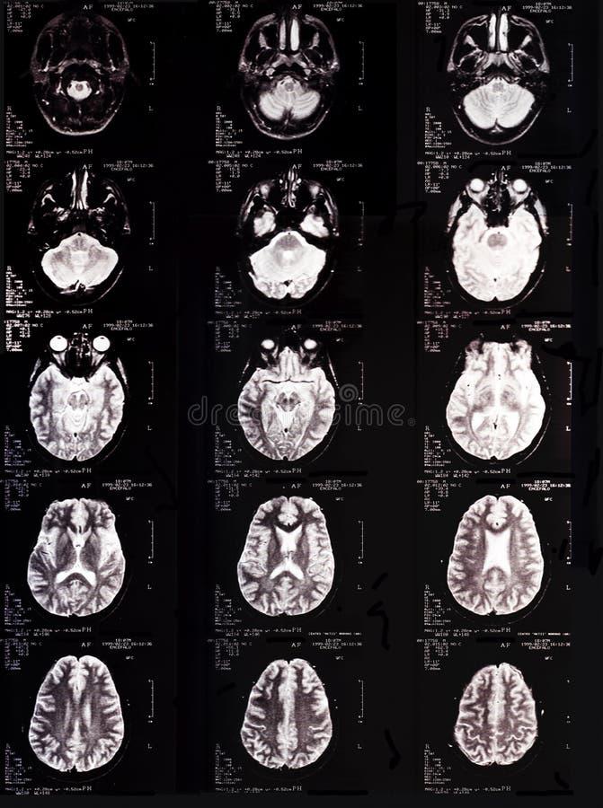 Tomografie stock afbeelding