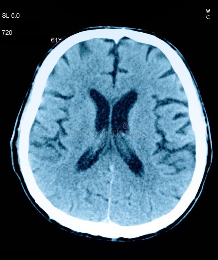 Tomography av hjärnan. royaltyfri bild